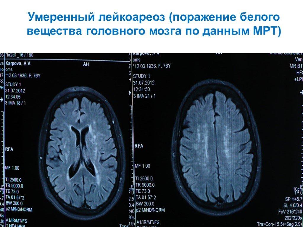Лейкоареоз головного мозга: причины, симптомы, формы, лечение и прогноз, диагностика