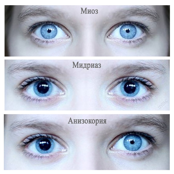 Зрачок глаза: описание, строение, функции, рефлексы - sammedic.ru