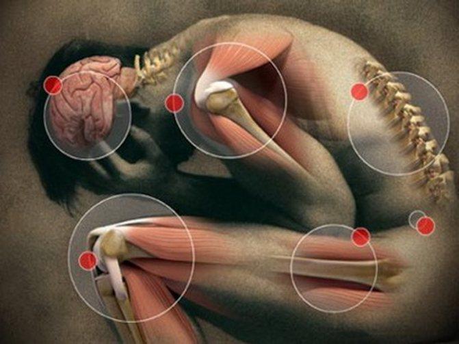 Что такое ревматизм? виды ревматических заболеваний