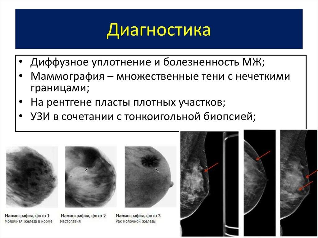 Фиброзно кистозная мастопатия: лечение, симптомы и отзывы