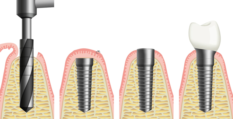 Нужно ли кт зубов при имплантации
