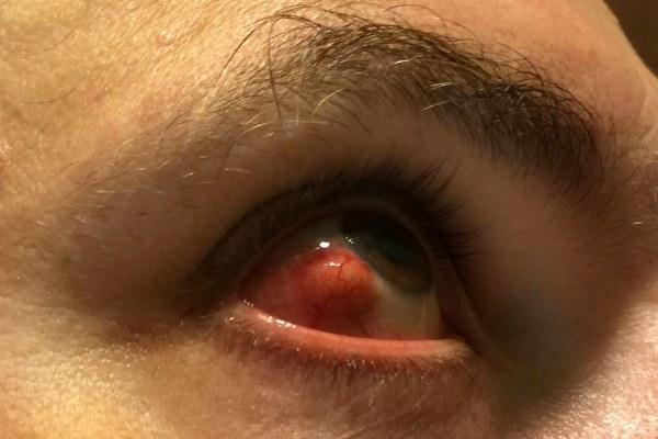 Причины инъецирования склер глаз