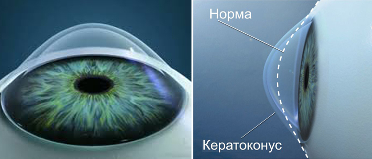 Роговица глаза