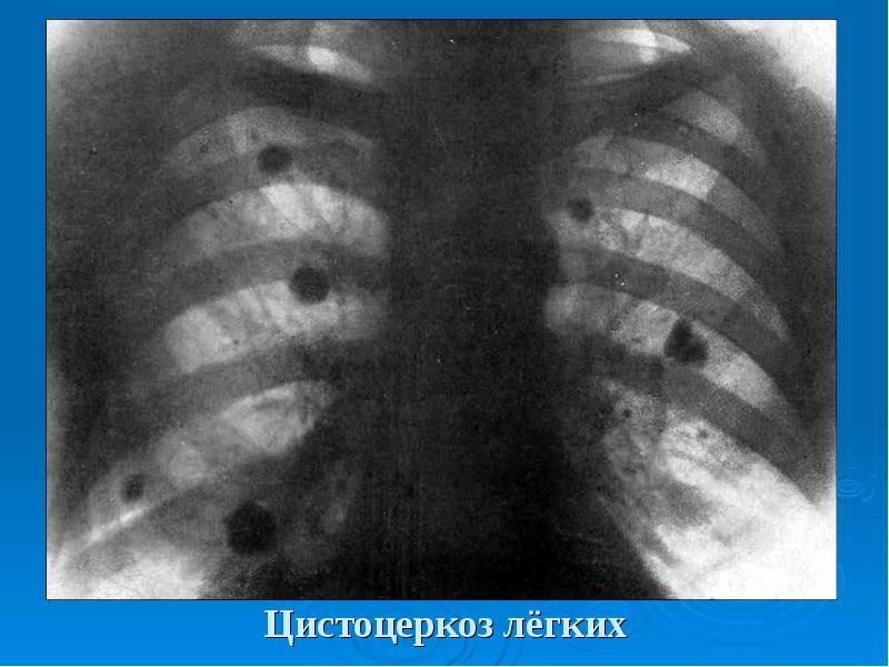 Как определить туберкулез легких: симптомы и признаки патологии