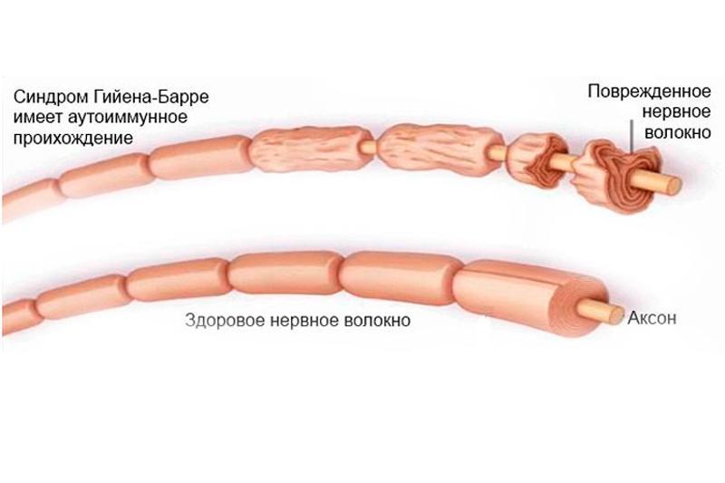 Синдром гийена-барре - что это за болезнь? - medical insider