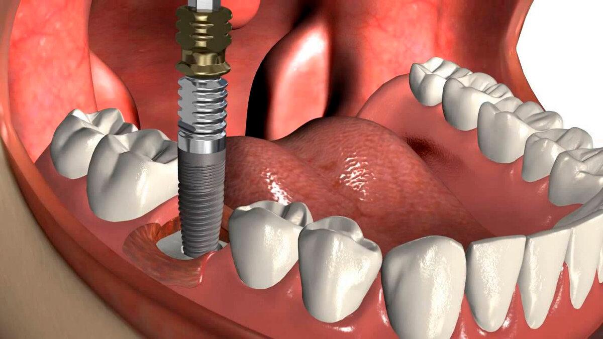Одноэтапная имплантация зубов: новая улыбка за короткий срок
