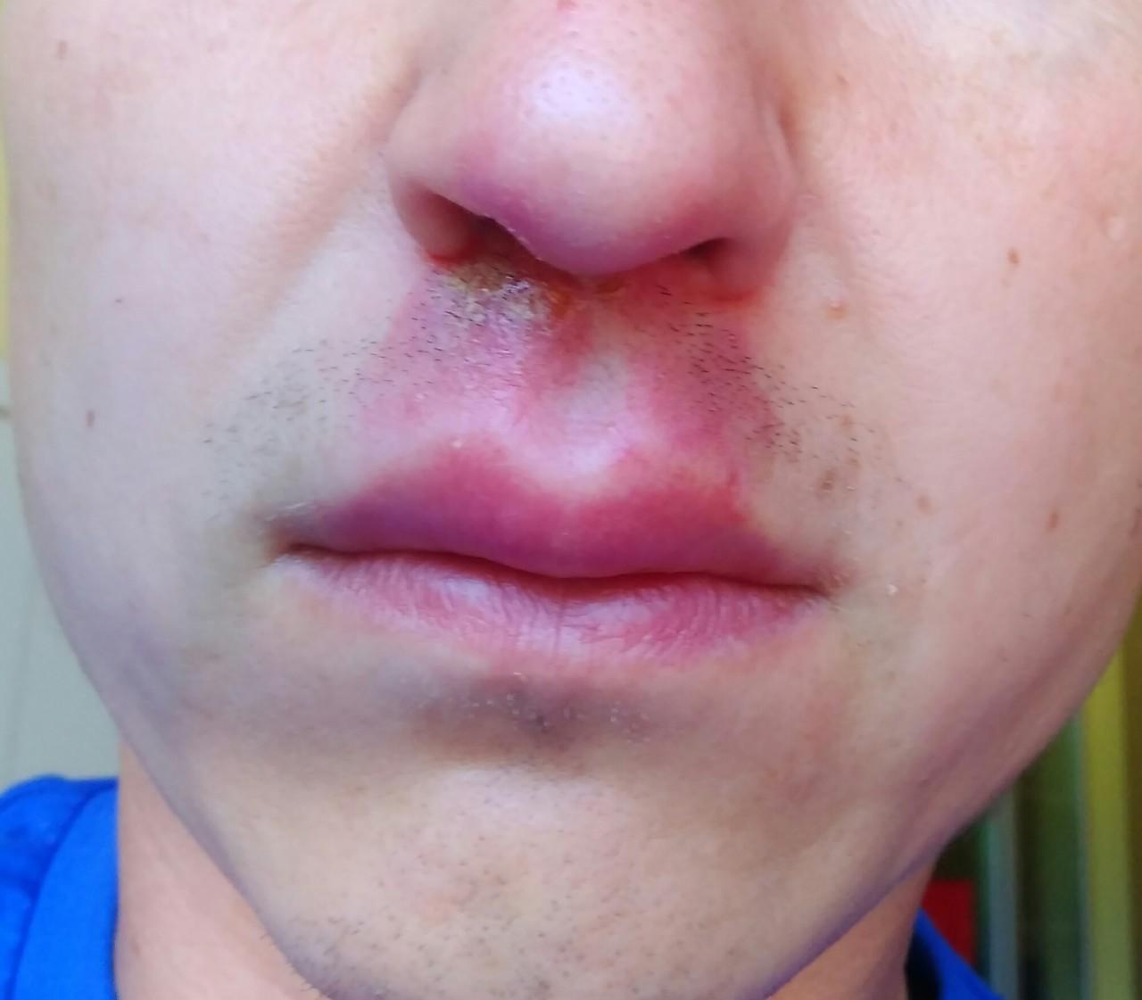 Диагностика и лечение эпидермального стафилококка. норма в мазке у женщин, мужчин. детский epidermidis staphylococcus