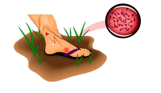 Столбняк: симптомы, диагностика, лечение в свао москвы