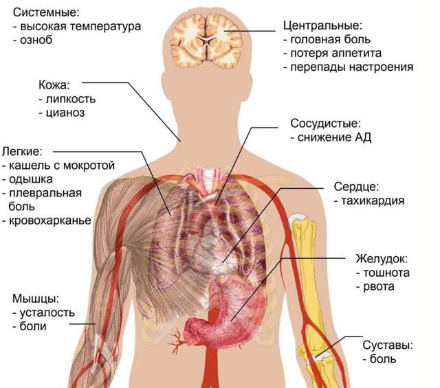 Что такое внебольничная пневмония и как ее лечить
