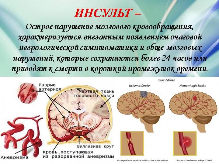 Онмк (острое нарушение мозгового кровообращения), симптомы
