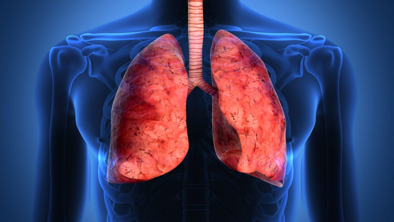 Пневмофиброз легких лечение народными. как лечить пневмофиброз легких народными средствами? лечение народными средствами