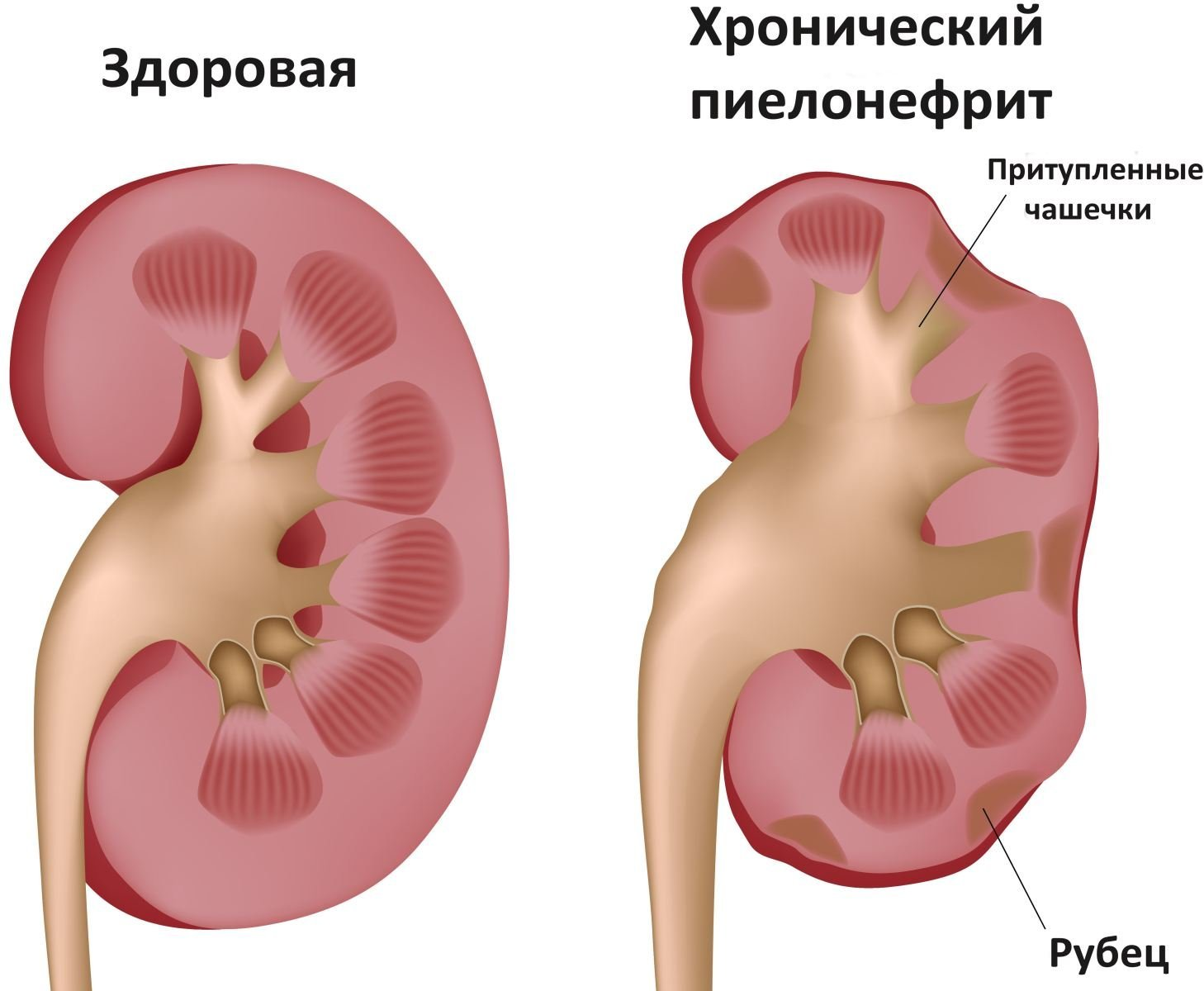 Что такое гидронефроз 1 степени. гидронефроз почек: что это такое, исход заболевания, симптомы и лечение. лечение гидронефроза почки.