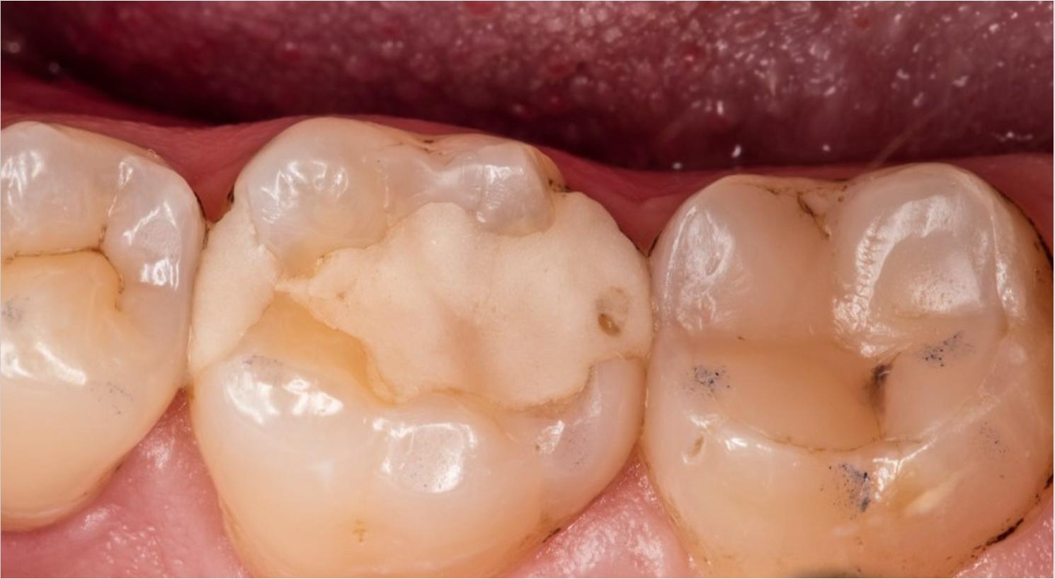 Световая пломба: цена, преимущества и недостатки для зубов, срок службы и отзывы - чем отличается от химической и через сколько можно есть