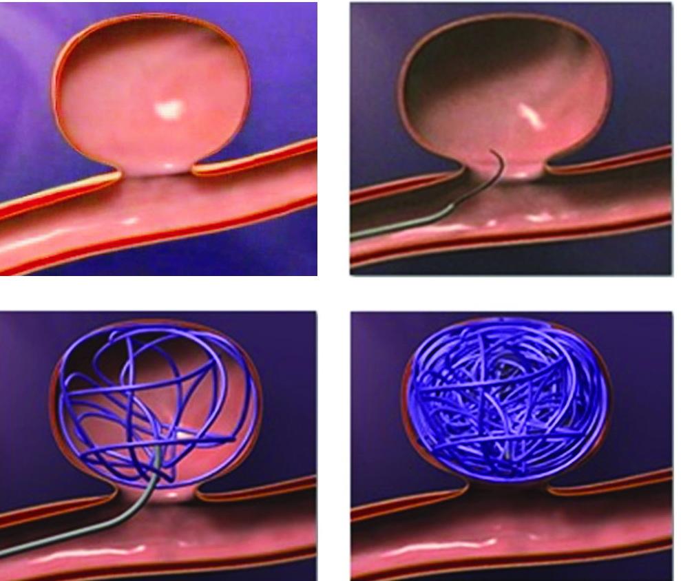 Аневризма сосуда головного мозга: 4 признака, которые должен знать каждый