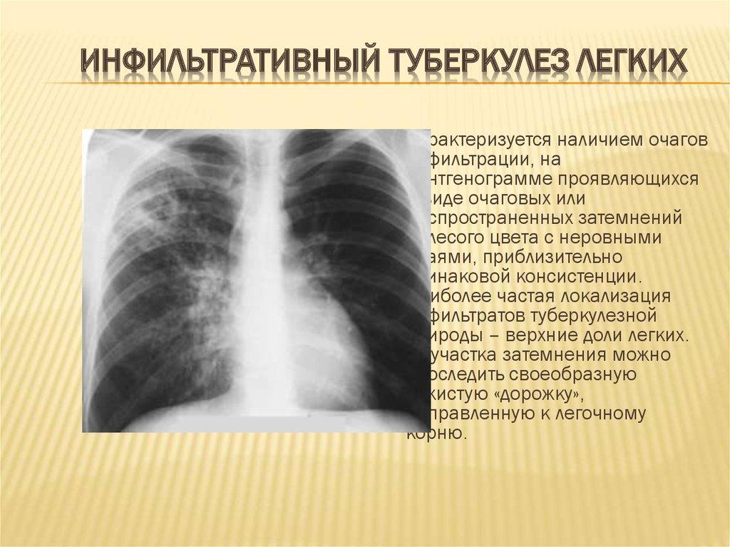 Что такое метатуберкулезные изменения в легких?