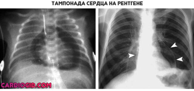 Тампонада сердца: причины и развитие, симптоматика, диагностика, первая помощь и лечение