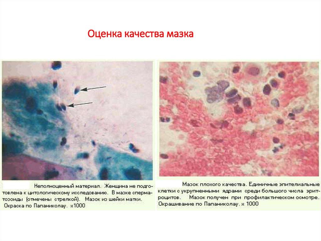 Ключевые клетки в мазке у женщин лечение