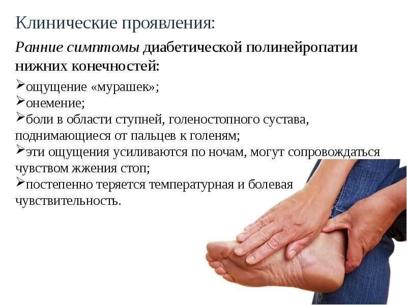 Диабетическая дистальная полинейропатия: симптомы и диагностика. лечение диабетической полинейропатии в москве