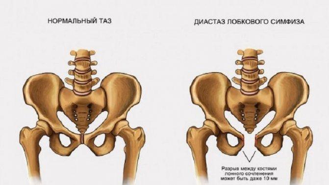 Симфизит (27 фото): симптомы при беременности и после родов, что это такое, расхождение костей таза у беременных, признаки и лечение