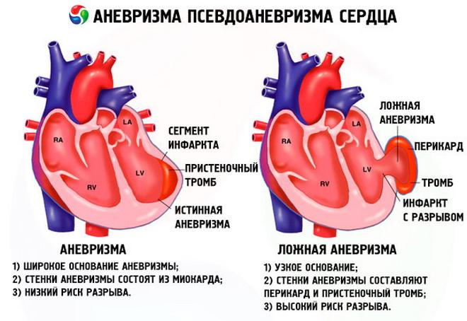 Аневризма сердца что это такое - здоров.сердцем