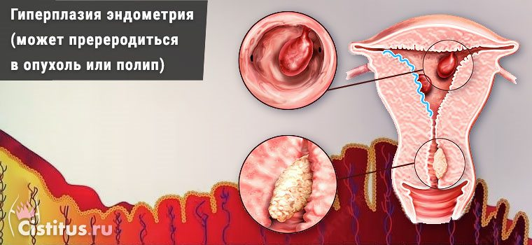 Гиперплазия эндометрия в постменопаузе - симптомы и лечение
