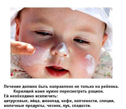 Диатез у детей разных возрастов: симптомы, лечение, диета