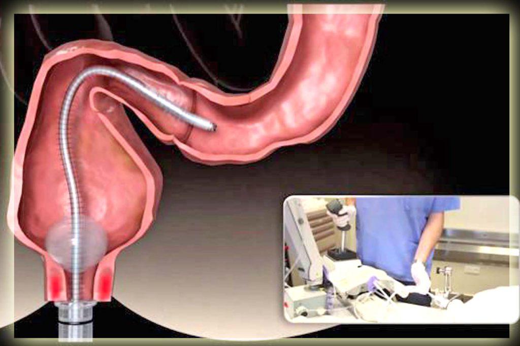 Колоноскопия кишечника: показания, противопоказания, результаты