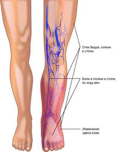 Тромбофлебит нижних конечностей: симптомы, фото, лечение