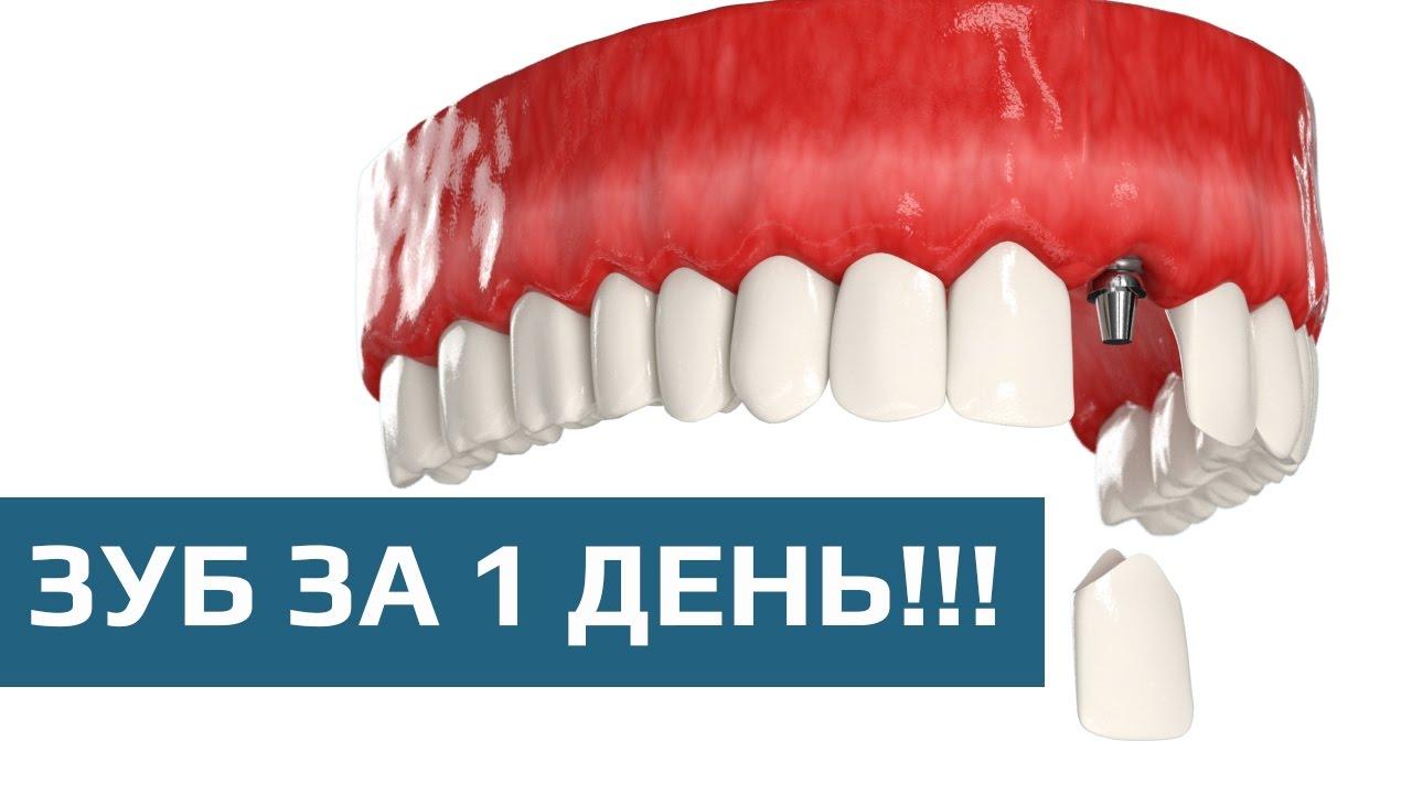 Съемное протезирование зубов – виды конструкций и правила выбора
