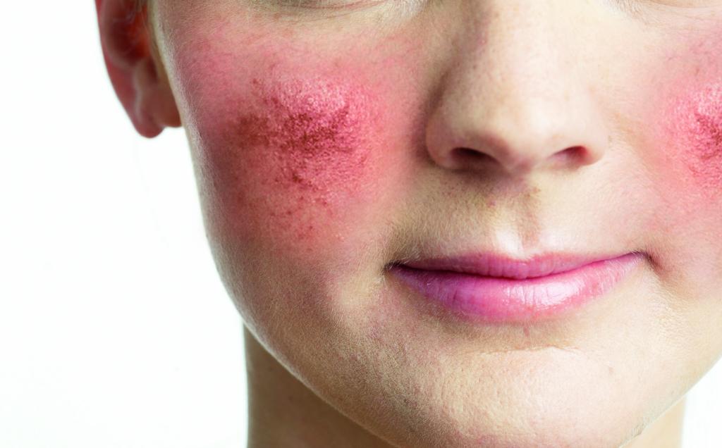 Розацеа на лице - причины у женщин, типы и лечение