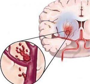 Стволовой инсульт (ствола головного мозга): что это такое и прогноз выздоровления