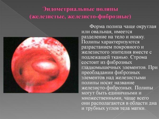 Причины образования полипов в матке: сущность патологии и возможные методы лечения