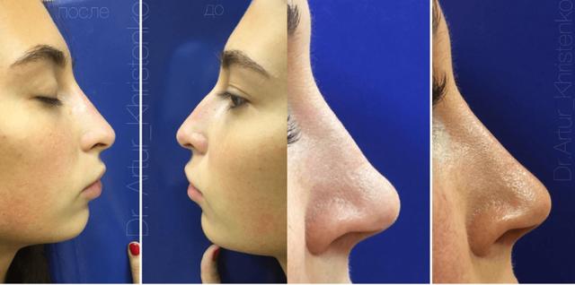 Ринопластика носа противопоказания. что нельзя делать после операции | ринопластика носа