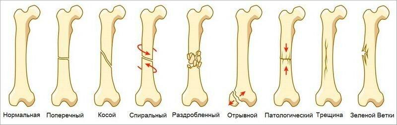 Закрытый перелом: что это, признаки, симптомы, первая помощь