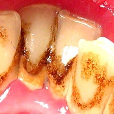 Как удалить зубной камень и почему он появляется
