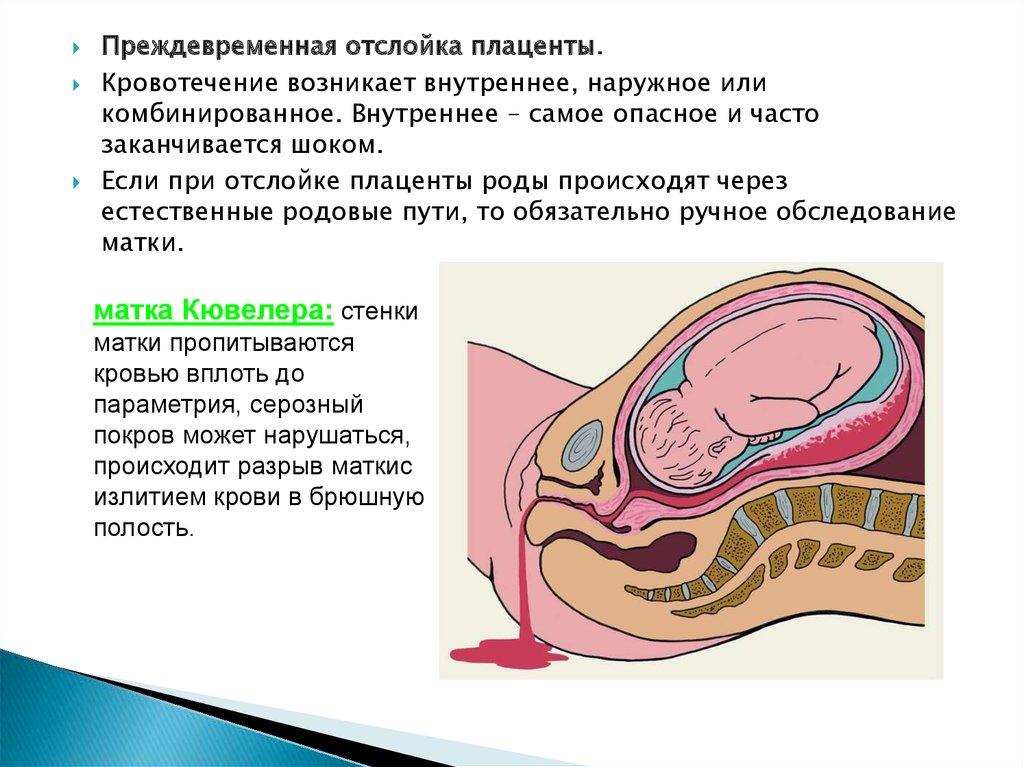 Плацента — википедия. что такое плацента