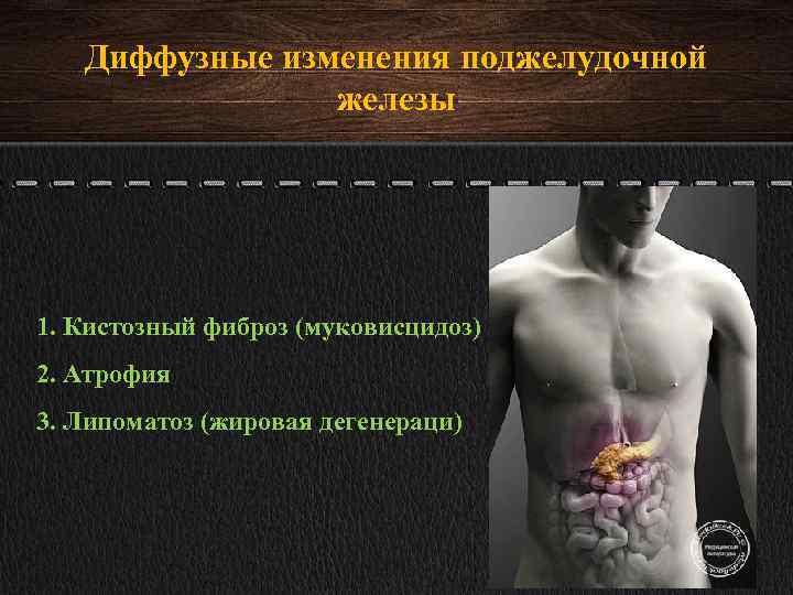 Диффузные изменения паренхимы печени и поджелудочной железы: признаки и лечение