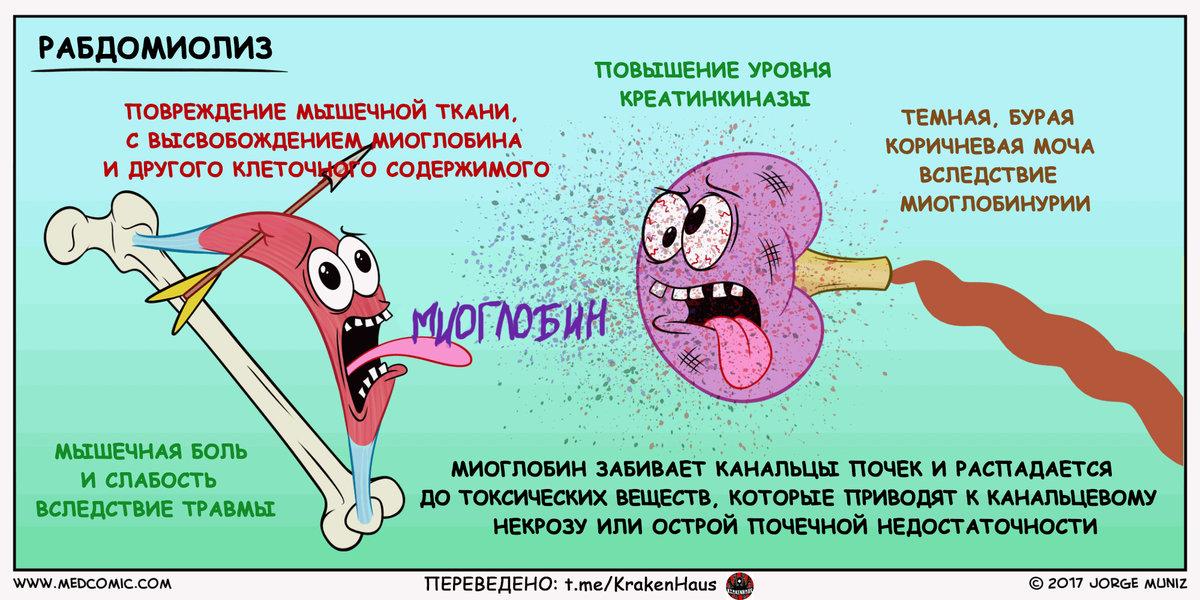 Как выявить и вылечить рабдомиолиз. рабдомиолиз – миф или реальность? как происходит лечение болезни