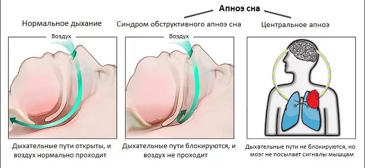 Апноэ – что это такое? остановка дыхания во сне – лечение апноэ сна