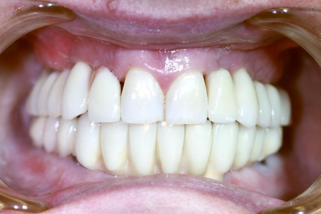 Больно ли поставить коронку и как ставят коронку на зуб в стоматологии