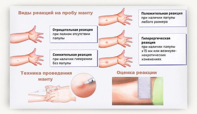 Папулезная крапивница у детей и взрослых: фото, симптомы и лечение   fr-dc.ru