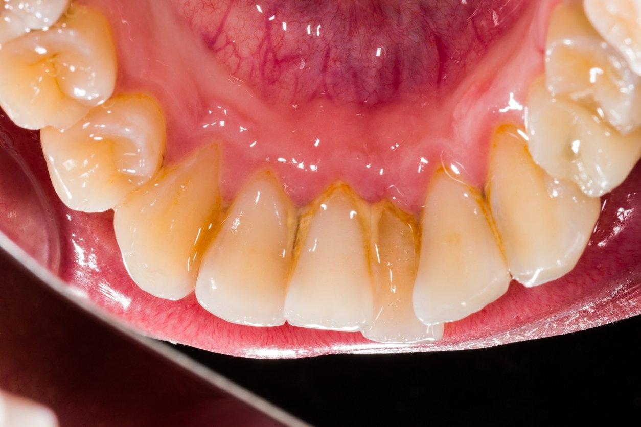 Причины возникновения зубного камня, как он образуется и какие есть способы борьбы с зубным камнем