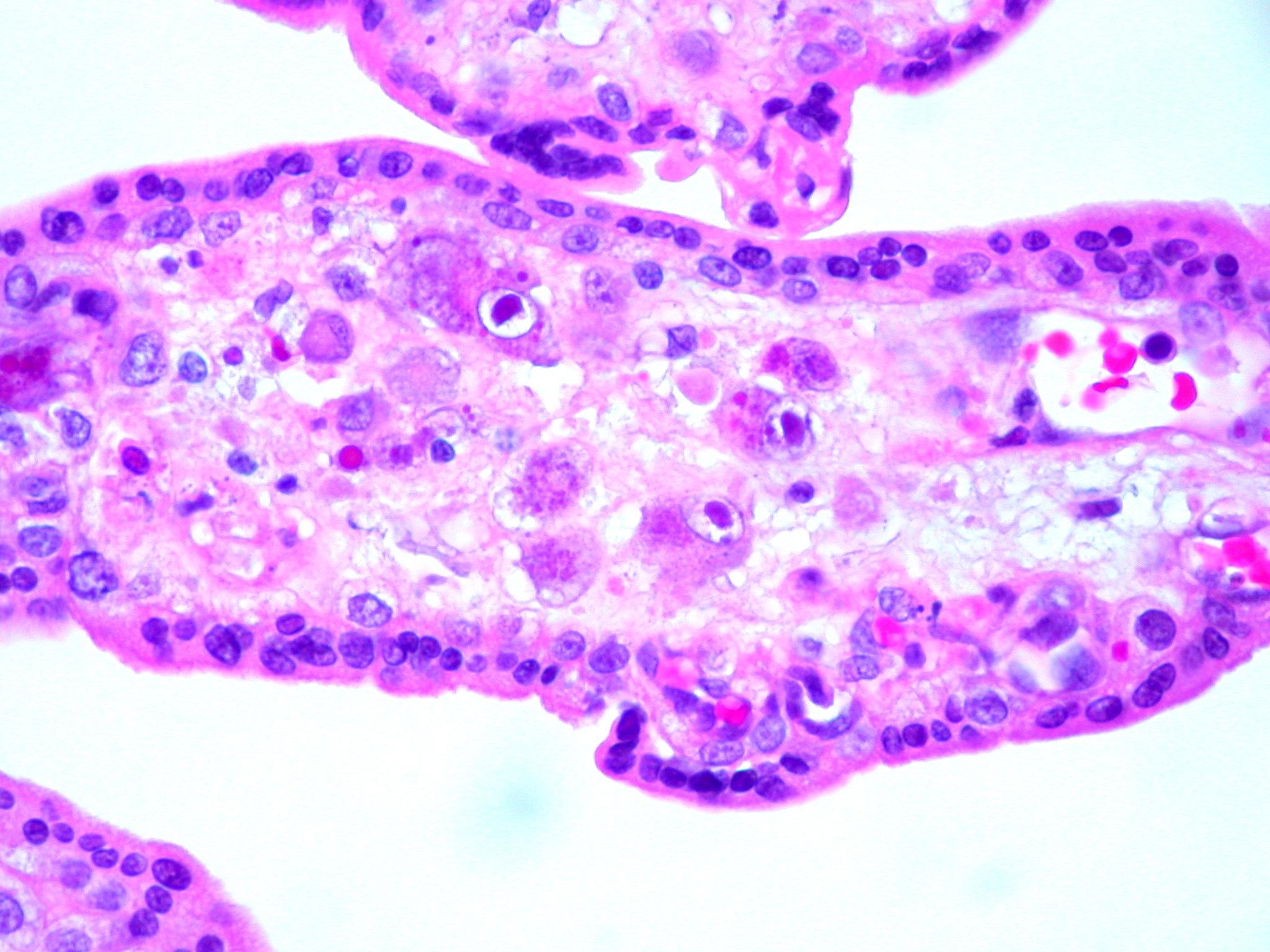 Цитомегаловирус — википедия с видео // wiki 2