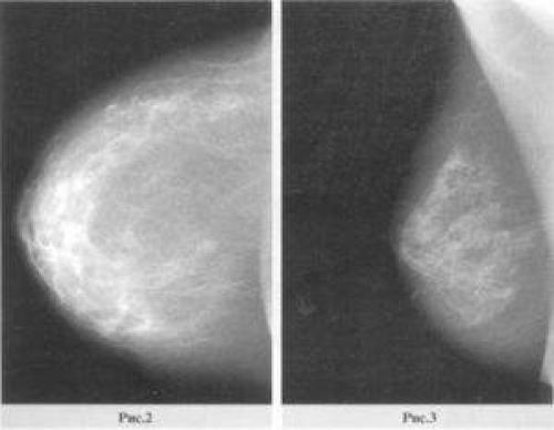 Фиброзно-жировая инволюция молочных желез: причины, симптомы и лечение