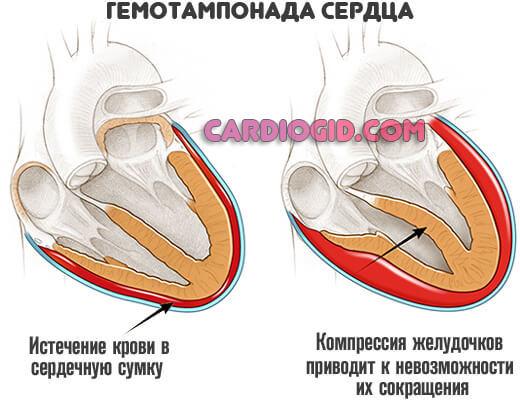 Тампонада сердца - симптомы, причины, неотложная помощь