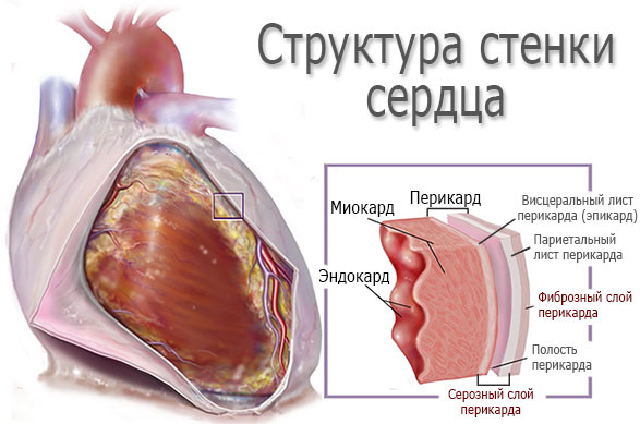 Перикардит — нарушение сердечно-сосудистой системы