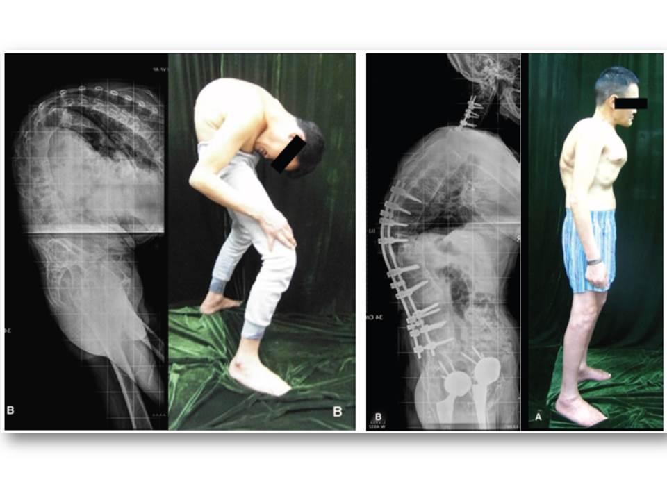 Болезнь бехтерева: что это такое, симптомы, лечение, прогноз для жизни