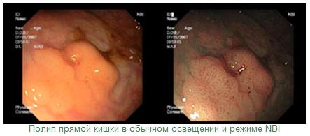 Фиброколоноскопия кишечника (фкс): что это такое, показания, подготовка к процедуре