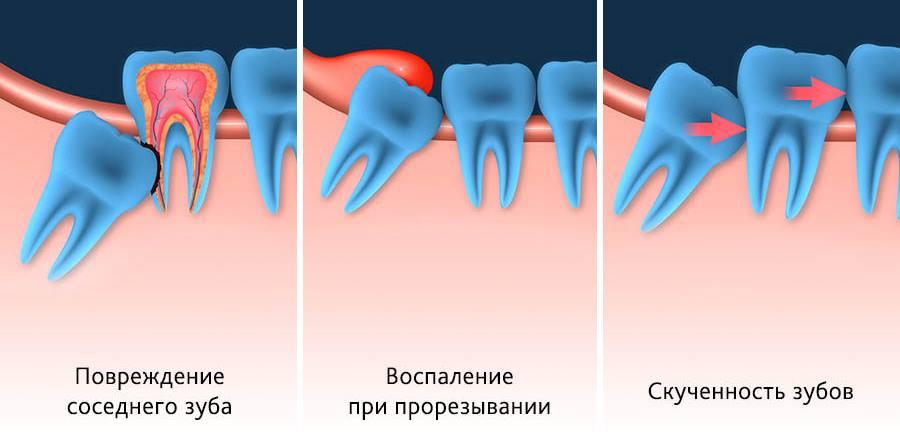 Ретинированные и дистопированные зубы