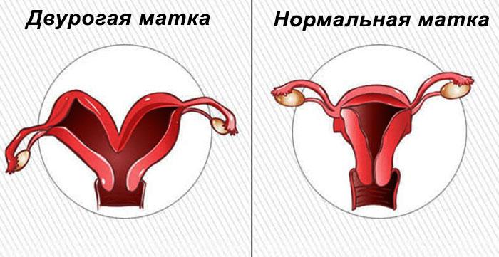 Двурогая матка - интервью с врачом-гинекологом